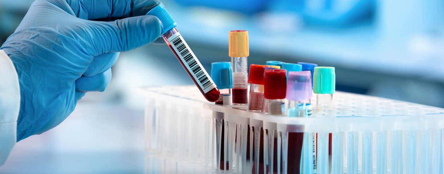 Checking Blood for Coronavirus Antibodies – 3 Questions Answered