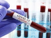 As Clinical Trials Halt, U.S. Covid Cases Surge