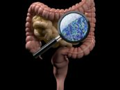 Gut Microbe Transplants Help Cancer Patients Respond to Immunotherapy and Shrink Tumors